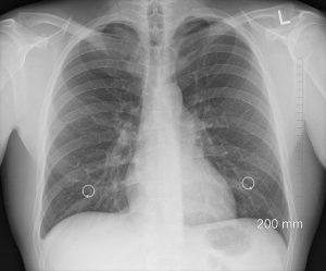 kebersihan paru paru